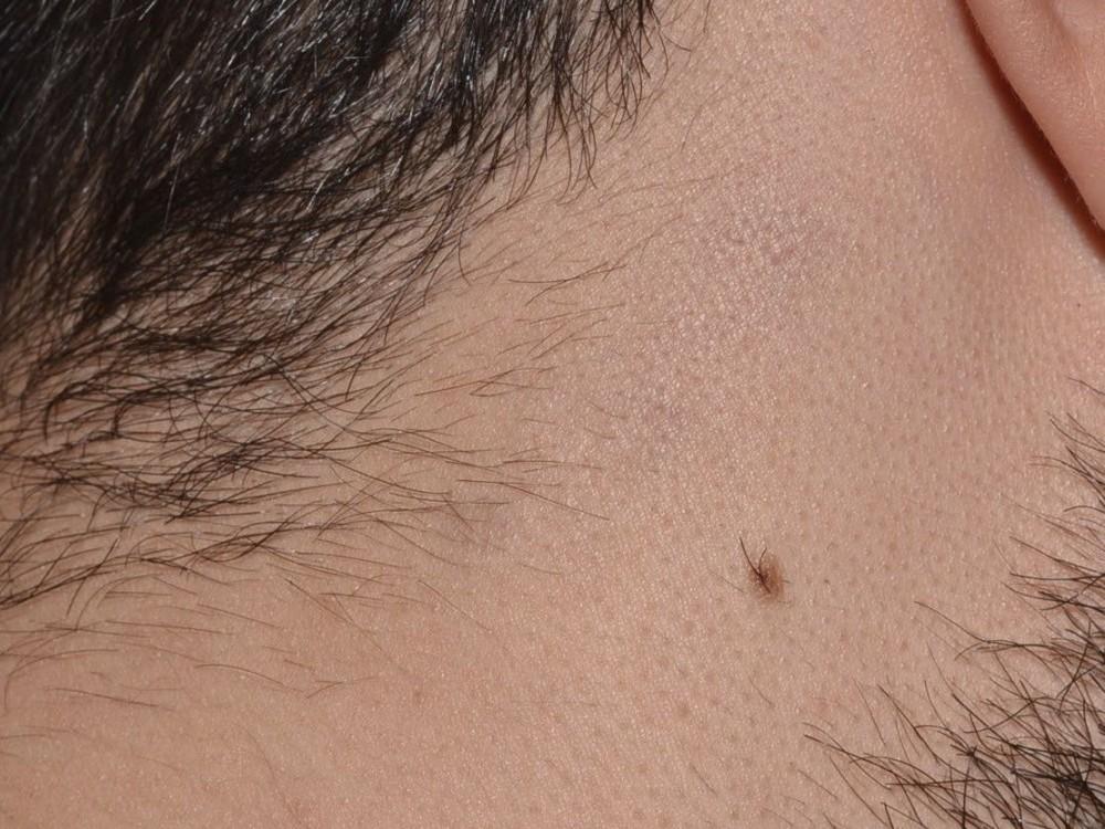 Rimozione Tatuaggi Laser | Skin Doctors' Center Trieste