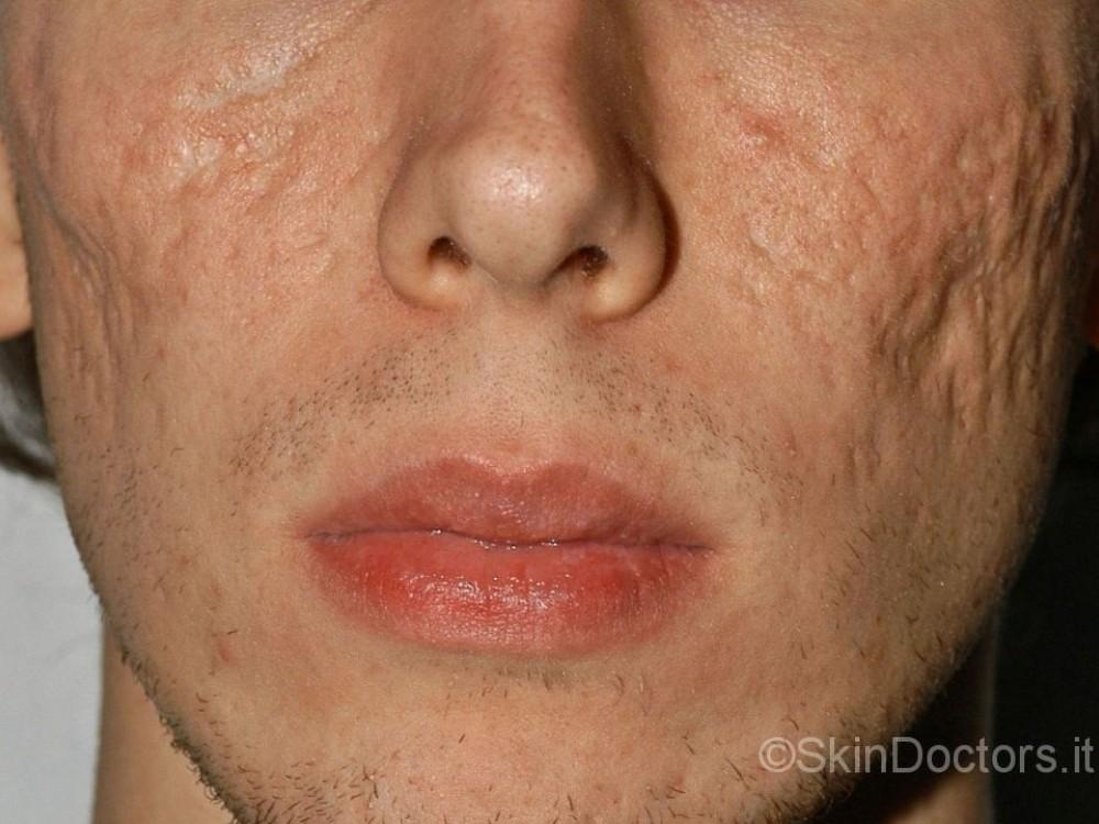 Carbonato di sodio per purificazione di faccia